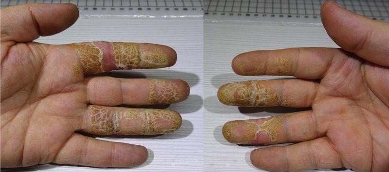111 отёк пальцев