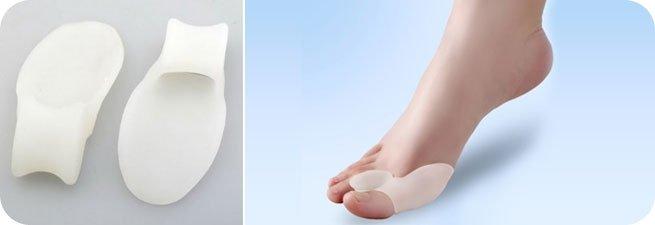 Фиксатор для косточки на ноге обзор видов и способов применения