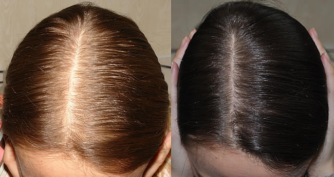 Выпадение волос - Страница 169 - Салон красоты - Все Вместе - Страница 169