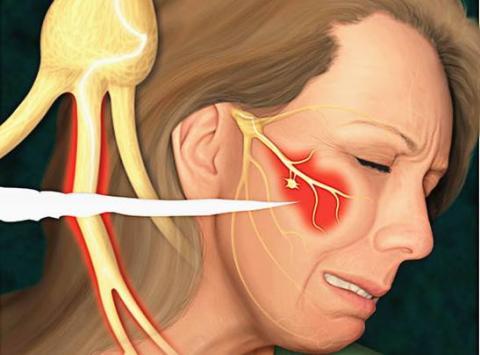 тройничный нерв.jpg